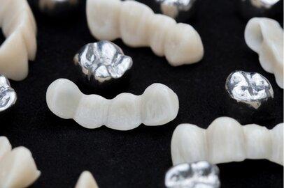 歯科技工士の給料はどのくらいか