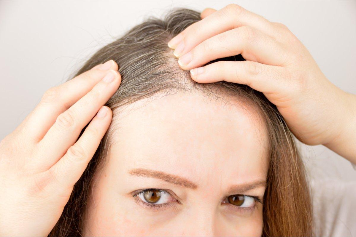 「白髪が増えた…」あなたは染める?染めない?3人のアラフィフ女性の白髪事情