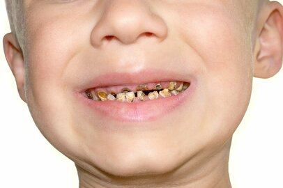 口腔崩壊の子供を目にした衝撃! 歯科検診で虐待や育児放棄の発見も