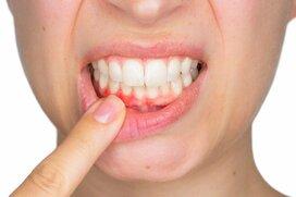 ホリエモンが「口が臭い人には仕事を発注しない」と断言する理由~歯の予防医療はなぜ必要か